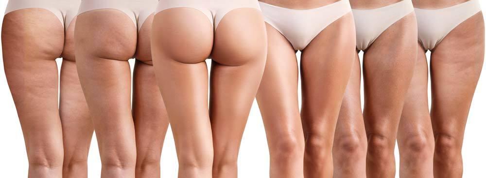 femmes avec cellulite et sans