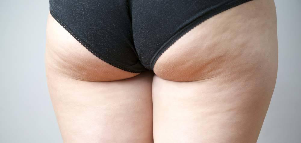 cellulite cuisses et fesses